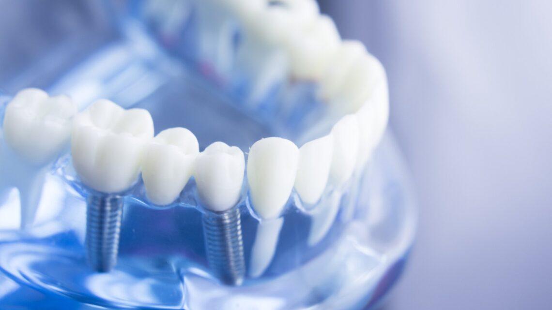 Impianti dentali: quanto durano?